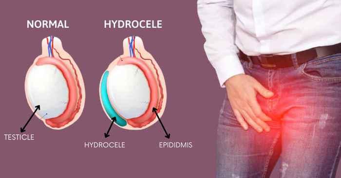 hydrocele in hindi